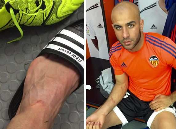 Photo : Abdennour montre les traces de son duel avec Suárez