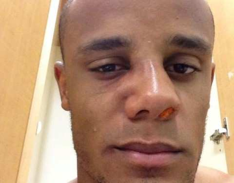 Photo : Kompany bien amoché