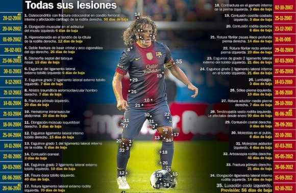 Photo : les blessures de Puyol