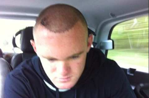 Photo : les cheveux de Rooney