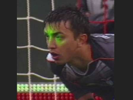 Photo : Muslera et le laser
