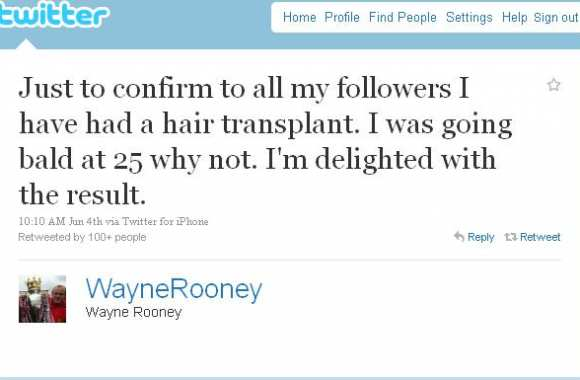Twitter : Les implants de Rooney